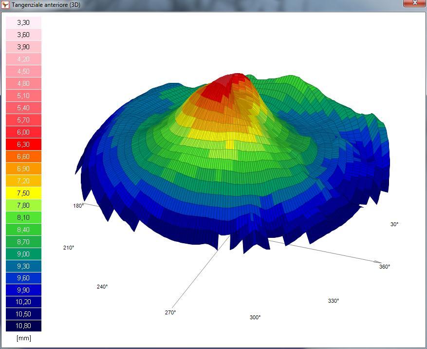 Mappa topografica 3D di un soggetto con cheratocono gestito presso il nostro Studio